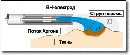 Аргоноплазменная коагуляция физика процесса